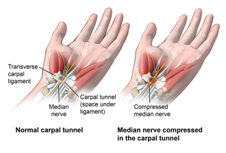 Anterior view of wrist comparing a healthy carpal tunnel with a compressed median nerve in the carpal tunnel; ortho_carp-tun-rel-endo_anat