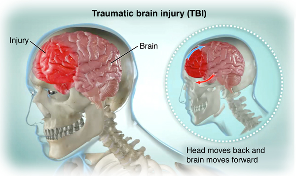 Side view of skeleton and brain, showing a brain injury