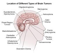 Locations of brain tumors